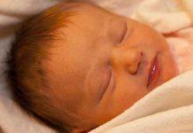 آیا زردی نوزاد در ناشنوایی تاثیر می گذارد؟