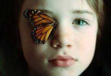 انواع بیماری پروانه ای ؛ راه پیشگیری و درمان