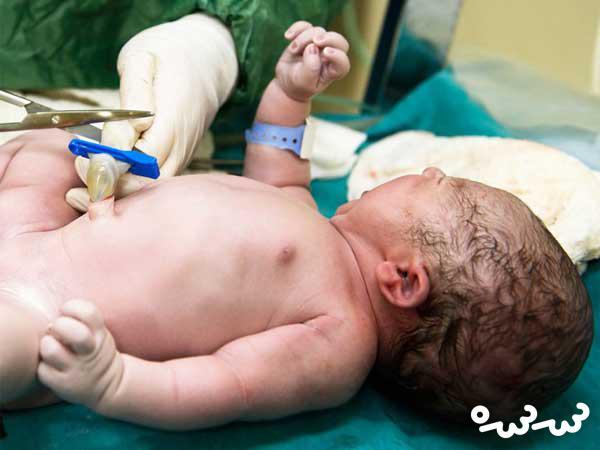 خون بندناف نوزادتان را دور نریزید