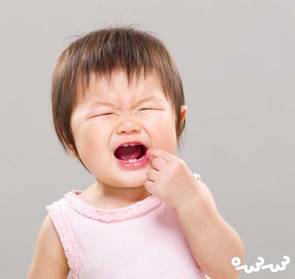 درمان دندان درد کودکان در خانه