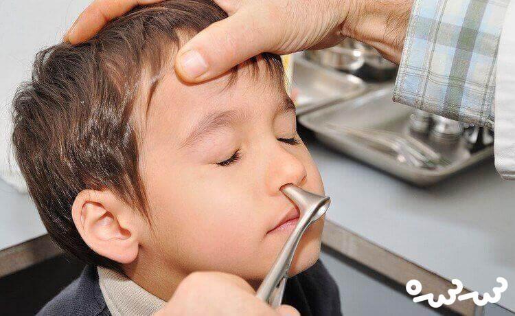 سینوزیت کودکان ؛ علل و راه های درمان آن