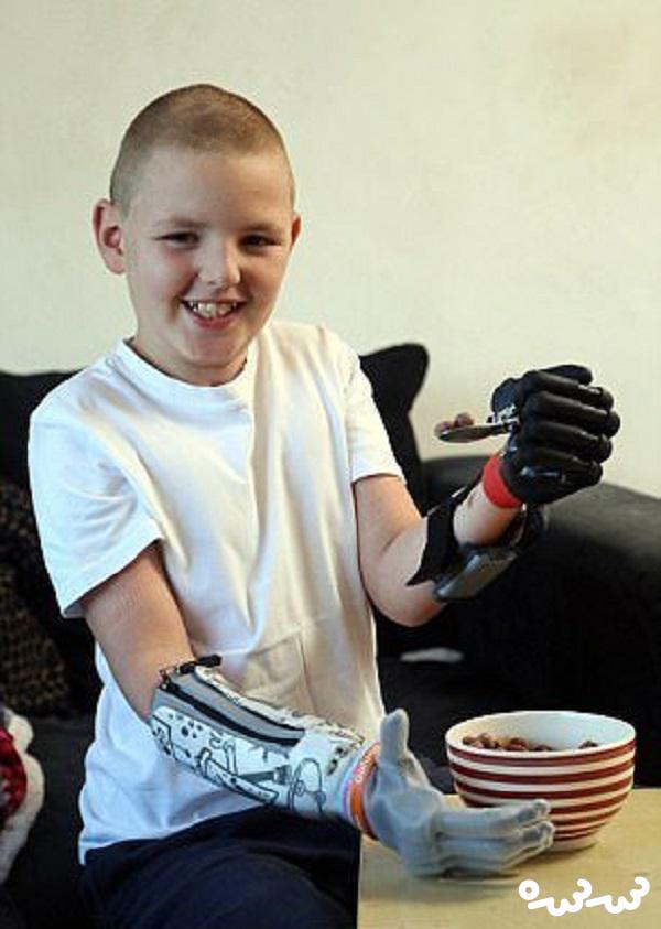 پسر بچه انگلیسی جوانترین فرد جهان با دو دست مصنوعی