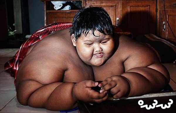 چاق ترین کودک جهان، لاغر شد
