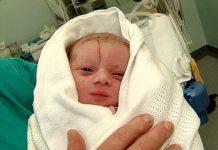 ۱۵ خطر زایمان سزارین برای مادر و نوزاد