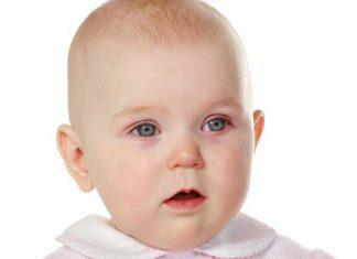 ۶ علت قرمزی چشم نوزاد