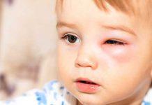 ۷ روش برای درمان گل مژه چشم کودکان