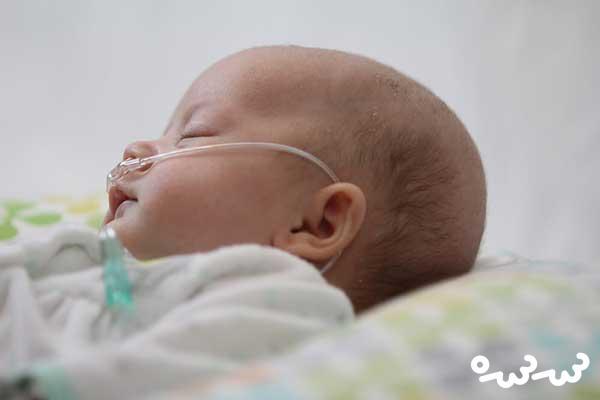 علائم اختلالات تنفسی کودک چیست؟