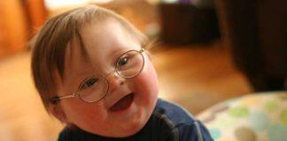علائم سندرم داون نوزاد چیست؟