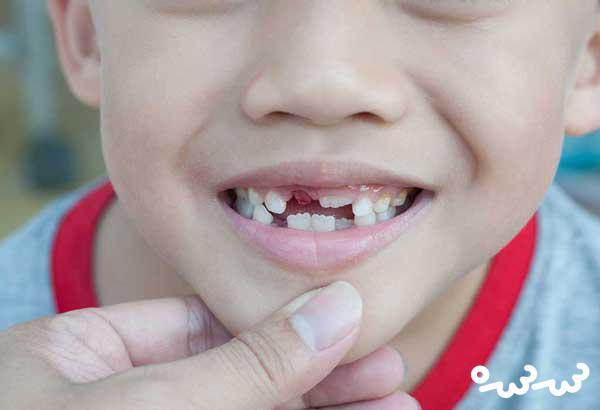 درمان دندان درد کودک