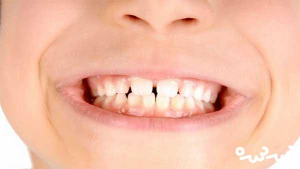 افتادن دندان کودک