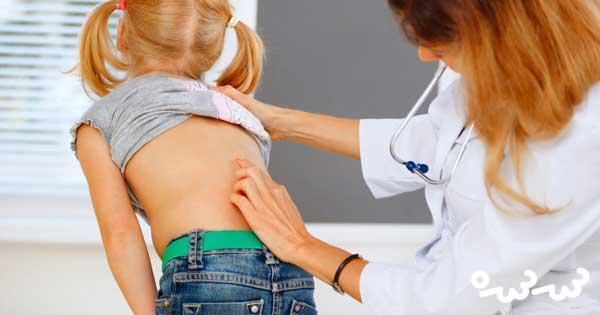 پوکی استخوان در کودکان