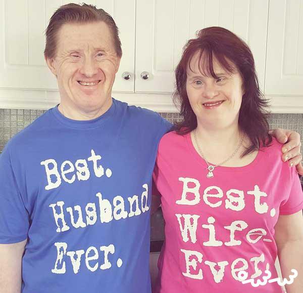 ازدواج سندرم داون