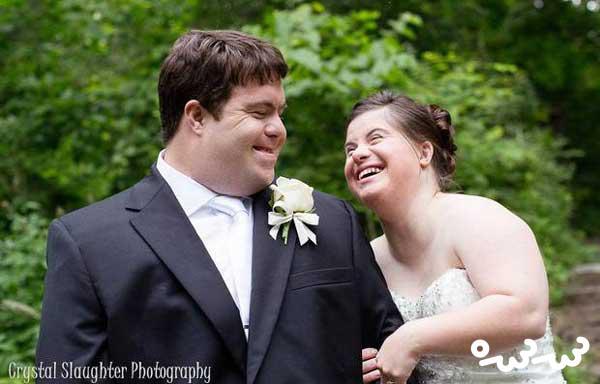 ازدواج افراد سندرم داون