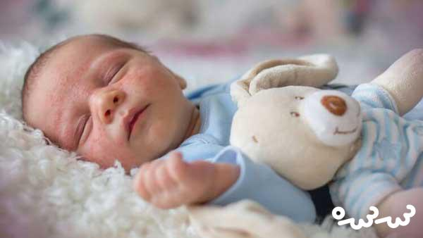علت جوش و قرمزی صورت نوزادان